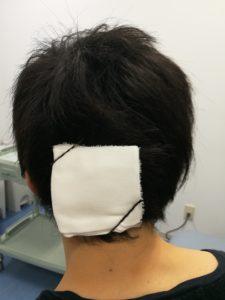 術後の後頭部